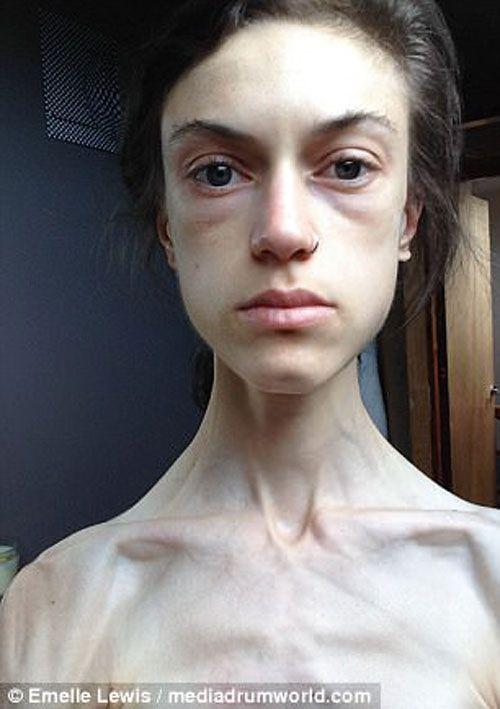 امل لوئیس Emelle بدن ساز بسیار زیبا که با پشت کار
